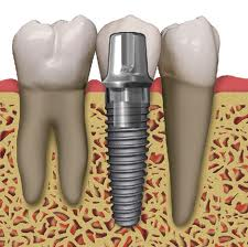 implant 1.jpg